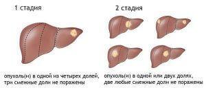 1-2 стадия печени