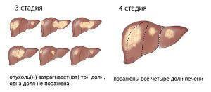 3-4 стадии печени