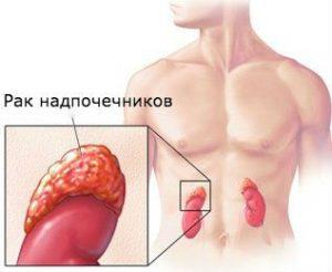 лечение рака надпочечников