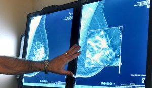 Установление стадии рака груди