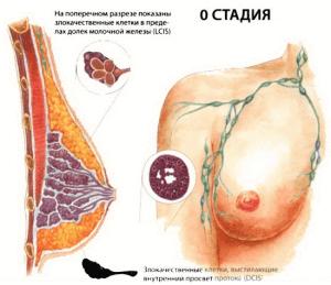 0 стадия рака груди