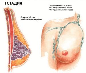 1 стадия рака груди