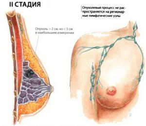 2 стадия рака груди