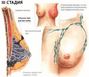 3 стадия рака груди