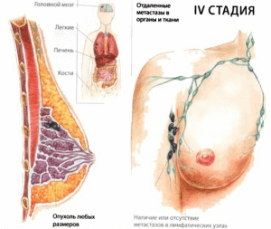 Лечение рака груди 4 стадия