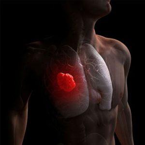 рак легких в ихилов