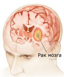 рак мозку ілюстрація