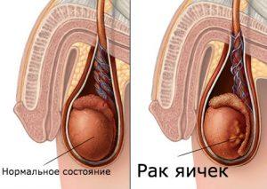 рак яичек онкоцентр