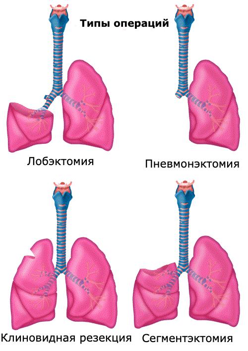 типи операцій при раку легенів