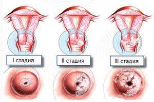 Стадии-рака-матки