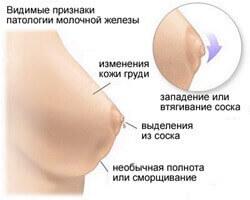 Опухоль при раке молочной железы