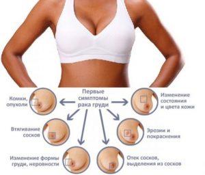 симптом рака груди