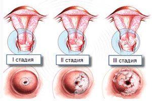 Стадии рака матки - 1, 2, 3 и 4