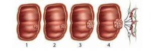рак прямой кишки стадии