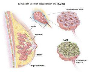 карцинома in situ