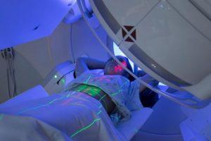 променева терапія раку легенів
