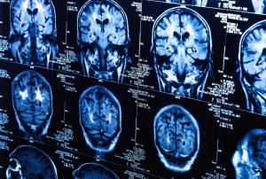 стадии рака мозга