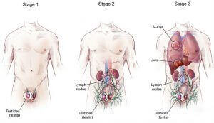 стадии рака яичек