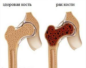 рак кістки