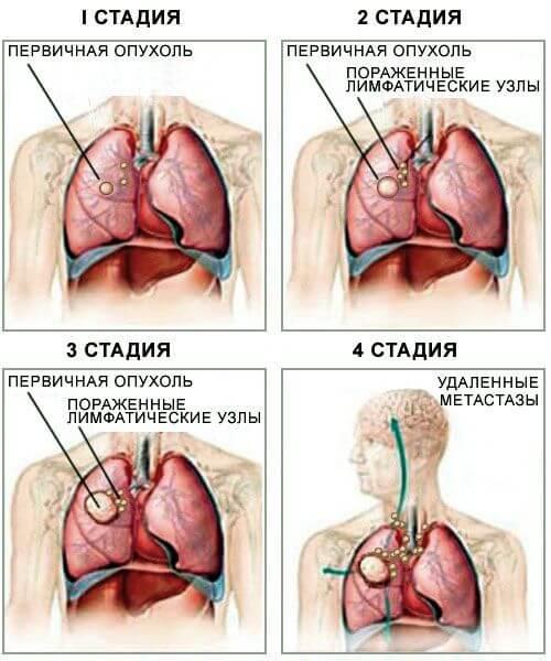 4 стадия рака лёгких