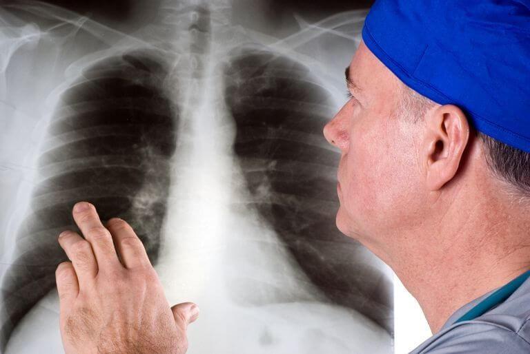 диагностика рака легкого в Израиле