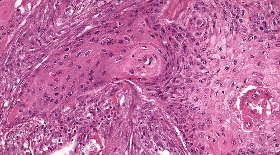 немелкоклеточный рак легких