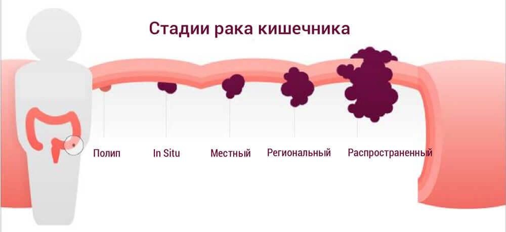 рак кишечника стадии