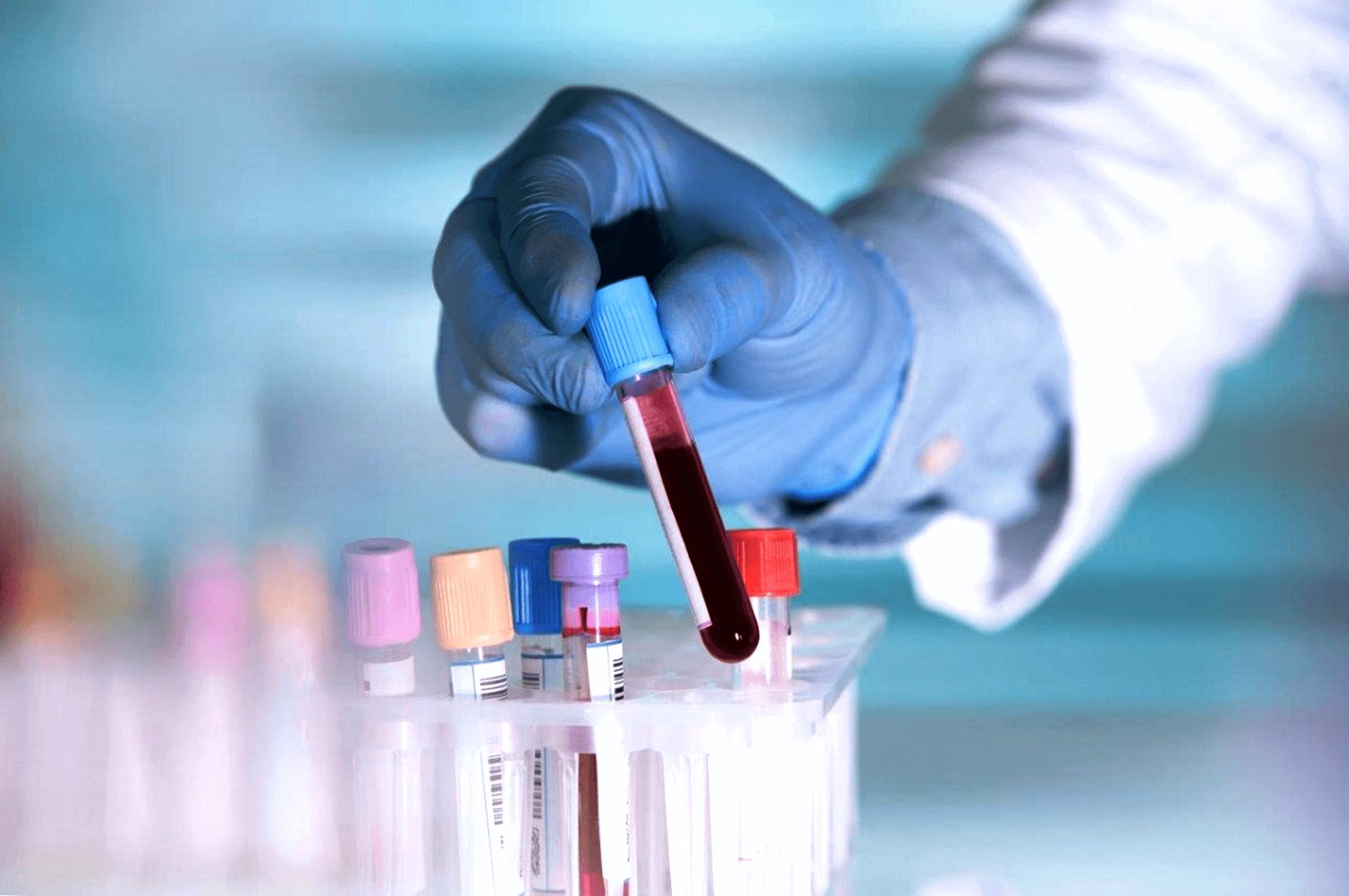 анализы крови при раке мочевого пузыря