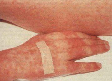 Болезнь трансплантант против хозяина часто проявляется на коже.